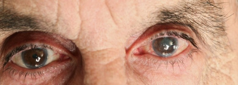 5fad79e9d9c Grey Or Cloudy Eye Color  It Could Mean Cataracts