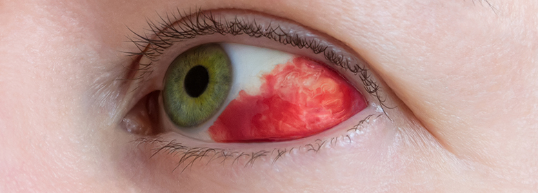 Is Your Exercise Routine Giving You Red Eyes?