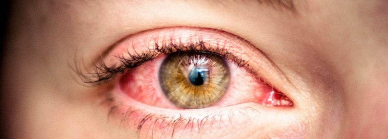 Rise And Shine To Bloodshot Eyes? You're Not Alone